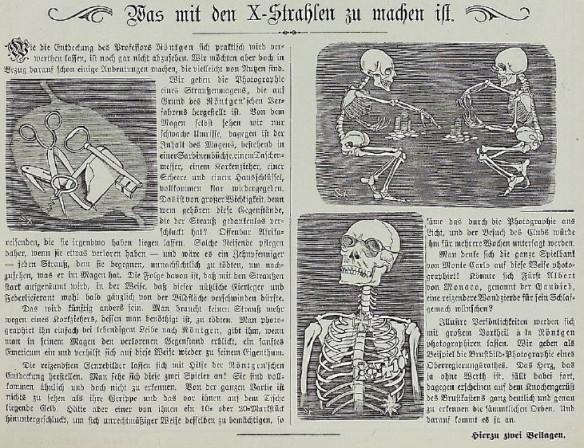 061_Kladderadatsch_049_1896_Nr04_p03_Medizinaltechnik_Röntgenstrahlen_Skelett