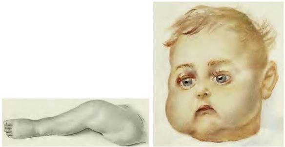14_Bendix_1913_p129 und nachp128_Vitaminmangelkrankheit_Moeller-Barlowsche-Krankheit