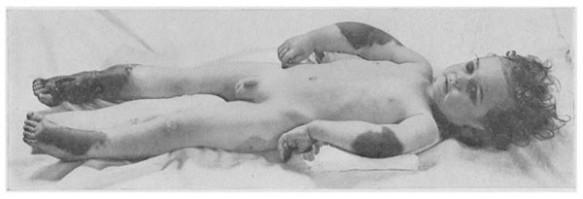 18_Feer_1922_p075_Vitaminmangelkrankheit_Moeller-Barlowsche-Krankheit