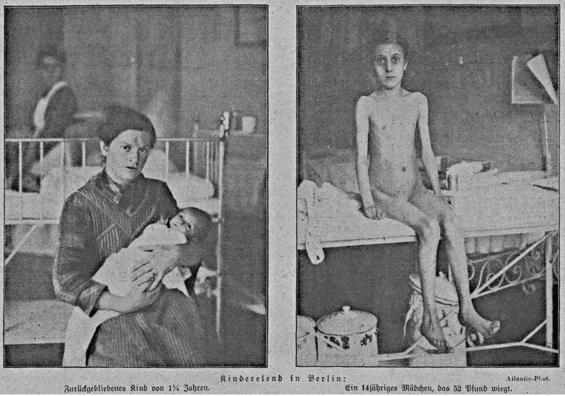 11_Zeitbilder_1920_03_13_Nr10_p2_Hungerblockade_Unterernaehrung_Kinder_Körper_Saeugling